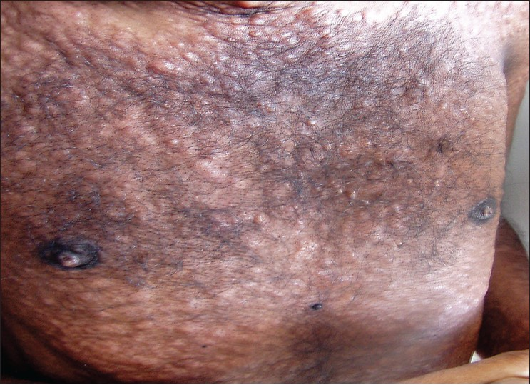 Figure 1: Infiltrated papules and nodules over the trunk