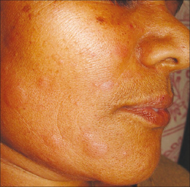 Facial Herpes, Control Herpes outbreaks Now and Forever!