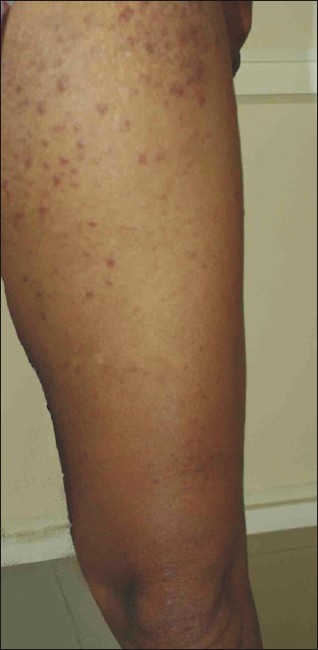 Figure 1: Patient showing erythematous papules, macules, and plaques on the lower extremity
