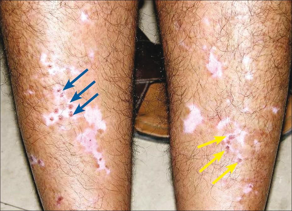 The Concept Of Stability Of Vitiligo A Reappraisal Lahiri K Malakar S Indian J Dermatol