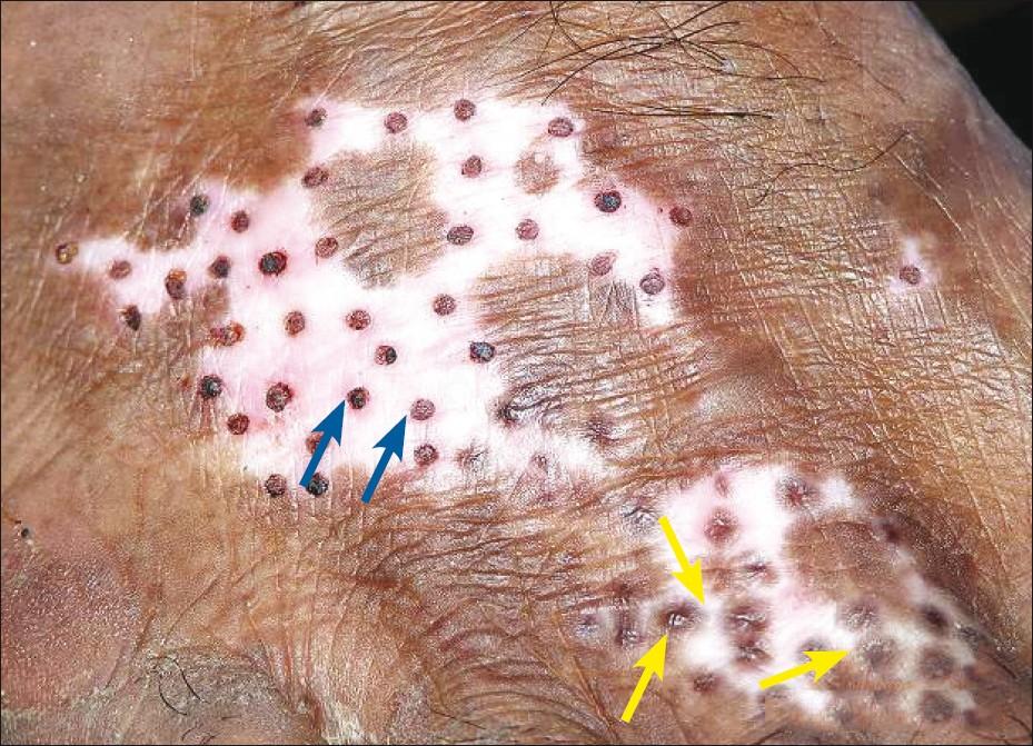 vitiligo india size
