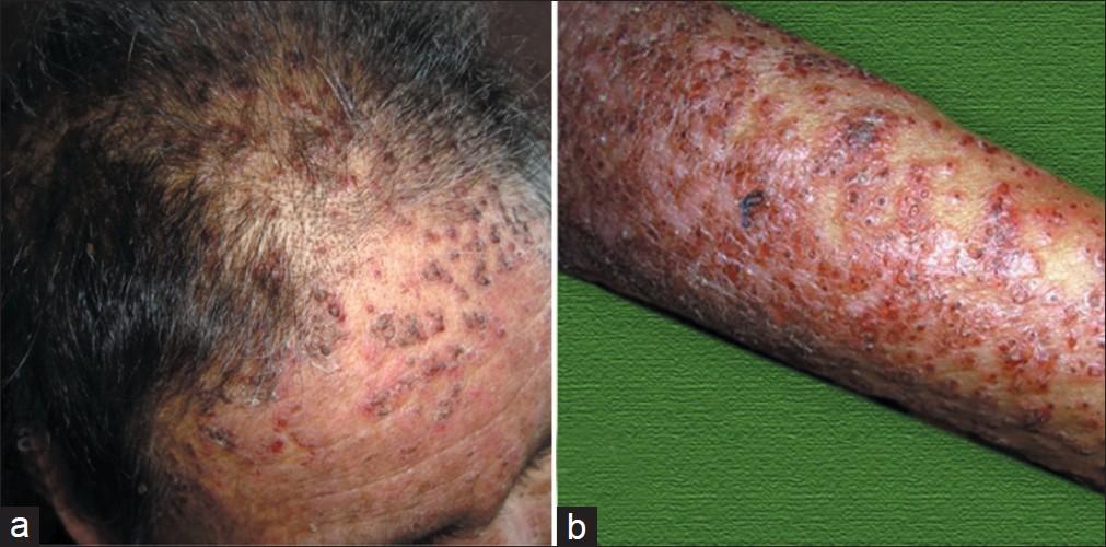 Treatment and prognosis of adult T cell leukemia-lymphoma
