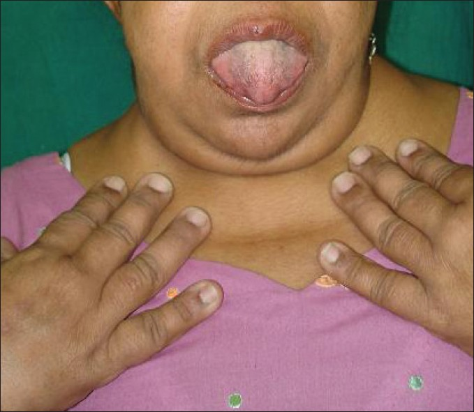 Fingernails and Thyroid Disease http://www.e-ijd.org/article.asp?issn=0019-5154;year=2012;volume=57;issue=3;spage=247;epage=248;aulast=Puri