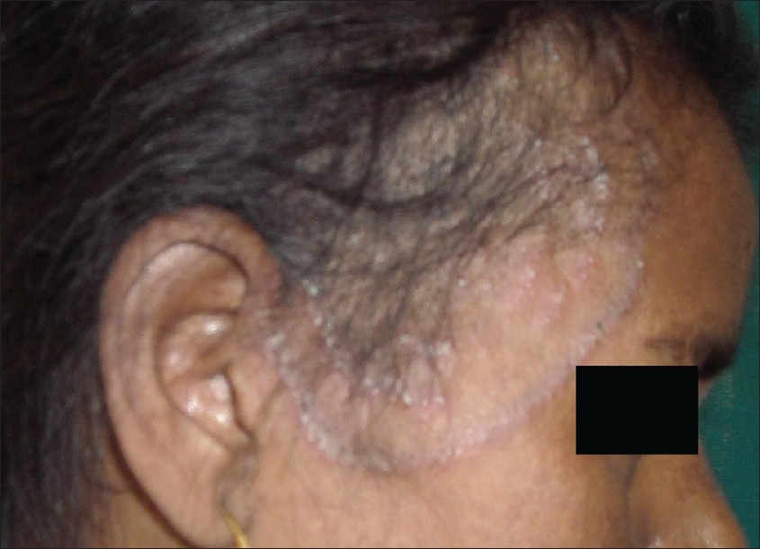 Figure 2: Concentric rings of tinea capitis extending to the face