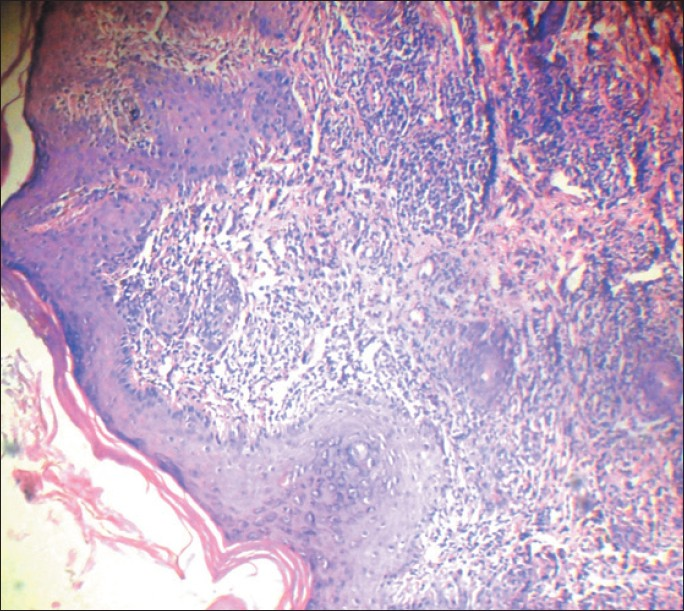Figure 3: Histopathology showing follicular plugging and perivascular cuffing with lymphocytes