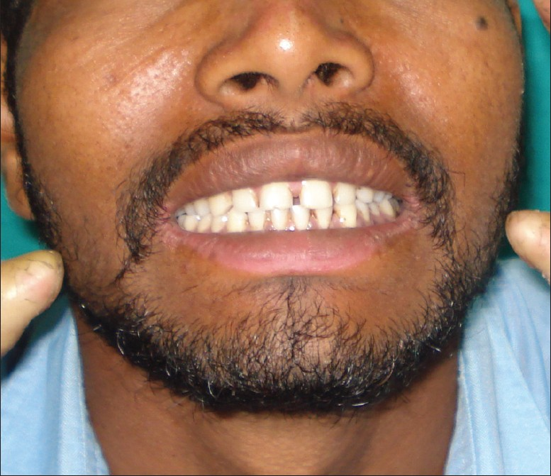 Figure 6: Involvement of the lower lip with angular cheilitis