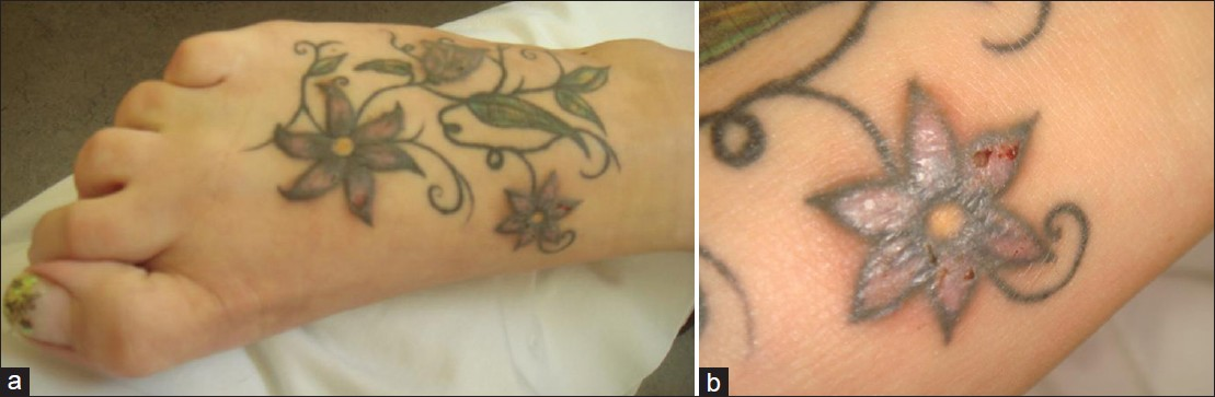 Severe adverse events related to tattooing an for Tattoo ink allergy