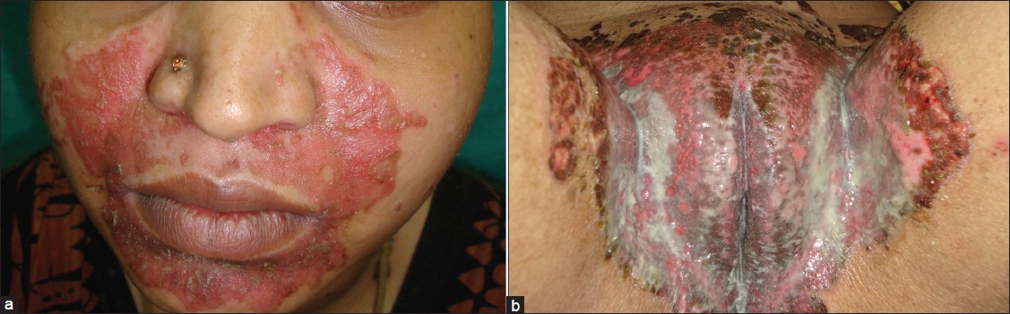 Figure 1: (a - b) Perioral and perigenital involvement by erythema, oozing and crusted lesions