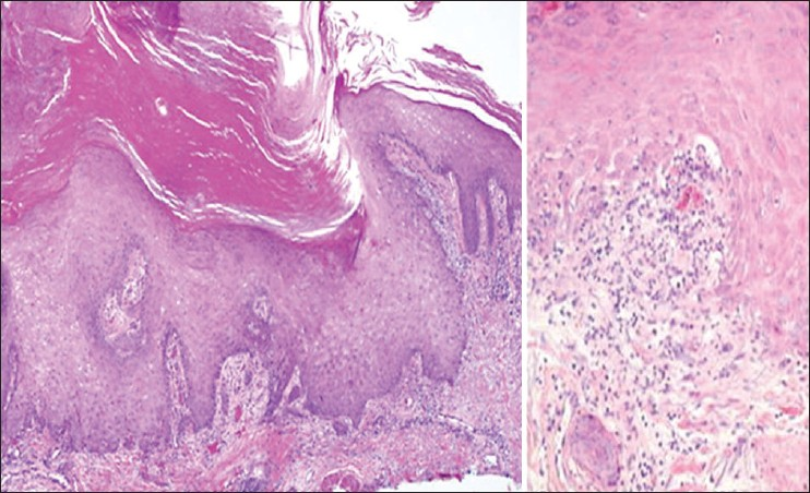 Figure 2: Histopathology from lesions showing hyperkeratotic, pseudoepitheliomatous hyperplasia of the epidermis with interface and deep lymphocytic infiltration and hydropic degeneration of the basal keratinocytes. (H and E ×40, ×100)