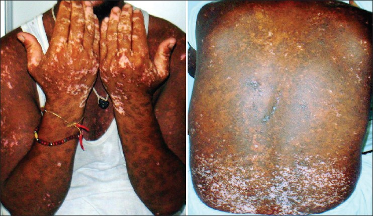 Figure 3: Post treatment learance of lesions and healing with hypopigmentation and hyperpigmentation