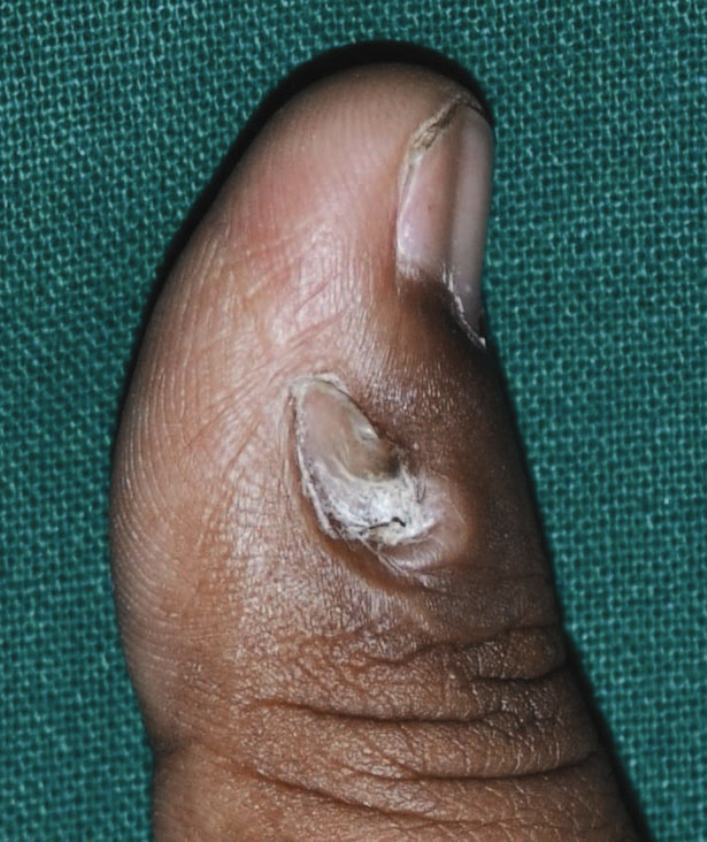 periorbital rash #11