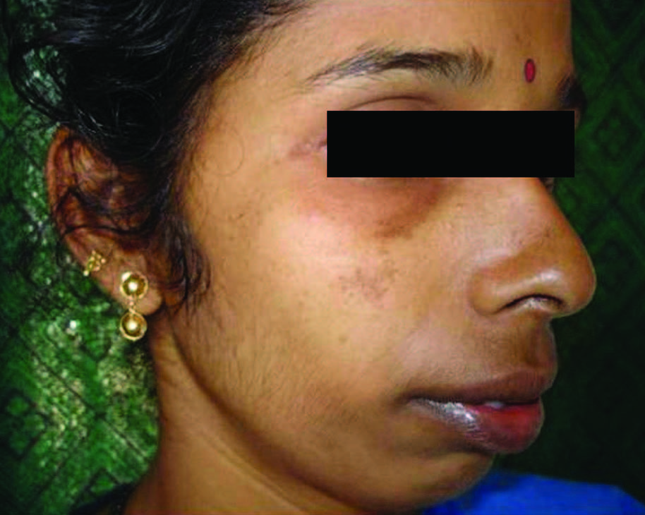 Figure 2: Clinical improvement seen after 12 weeks of therapy with 4%  Hydroquinone.