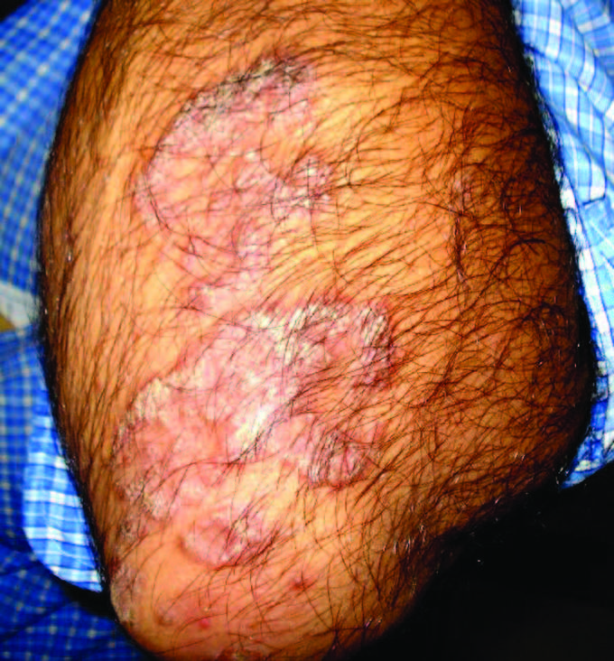 Erythema gyratumrepens has developed in resolving pustular psoriasis 3
