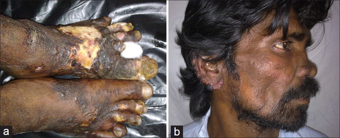 Figure 1: (a) Hemorrhagic blisters and purpuric macules over dorsum of both the feet (b) Clear fluid filled vesicles and hemorrhagic crusting present along the rim of the right ear