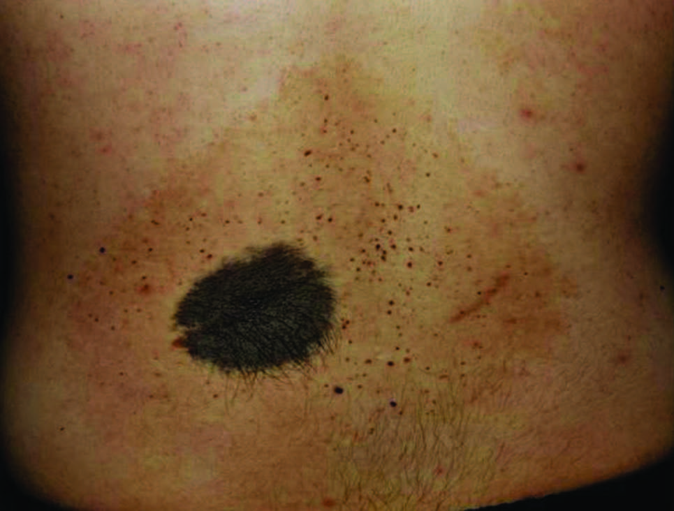 Figure 1: A tannish-brown hyper pigmentation with superimposed dark macules, and black hairly plaques ranging up to 7 × 8 cm on the zback