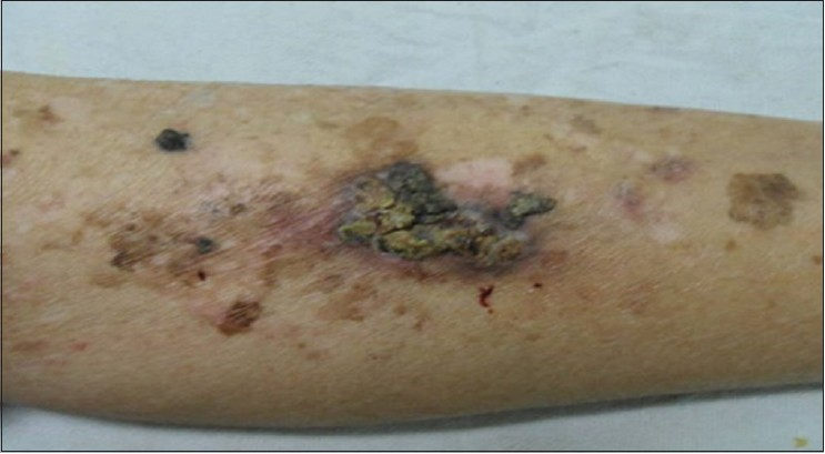 Figure 3: Bowen's disease on a background of erythema ab igne