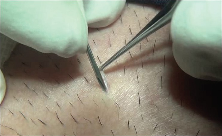 Figure 9: The tip of the needle is used to cut the adhesions of the follicular unit to deep dermal tissues
