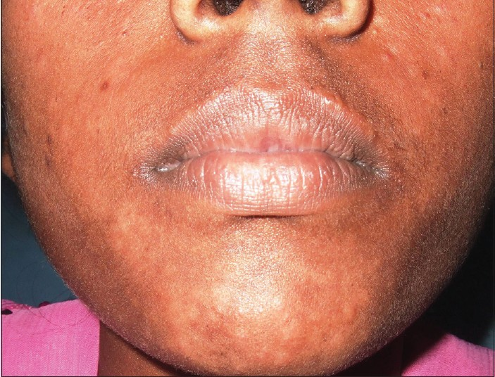 Figure 1: Case 1: Hypopigmented macules on face
