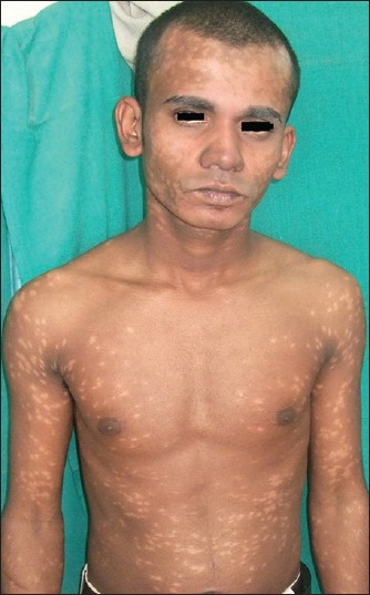Figure 4: Case 2: Depigmented macules on body
