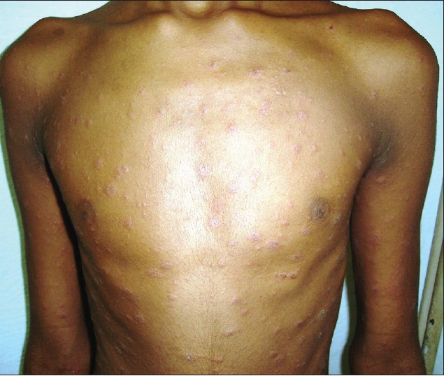 Figure 4: Multiple scaly papules and plaques arranged in Christmas tree pattern. Numerous targetoid lesions intermixed with typical looking PR lesions