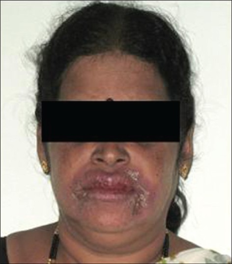 Figure 1: Patient with upper lip swelling and peeling in perioral area