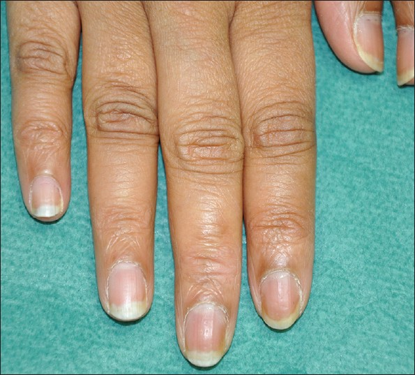BACKGROUND Pulsed dye laser has been used successfully in the treatment of nail psoriasis 1