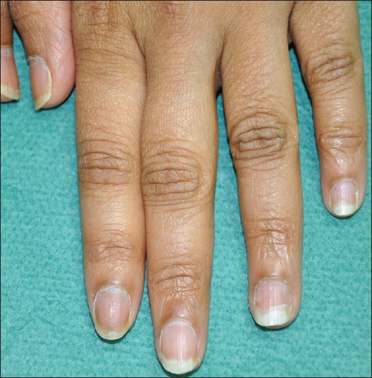 Figure 4: Left hand nails after treatment