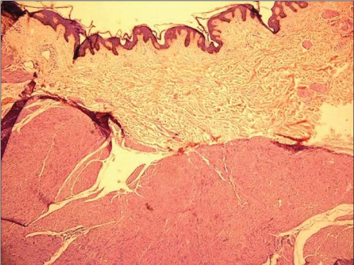 piloleiomyoma #11