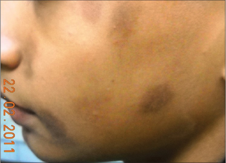 Figure 2: Hyper pigmented macules over face