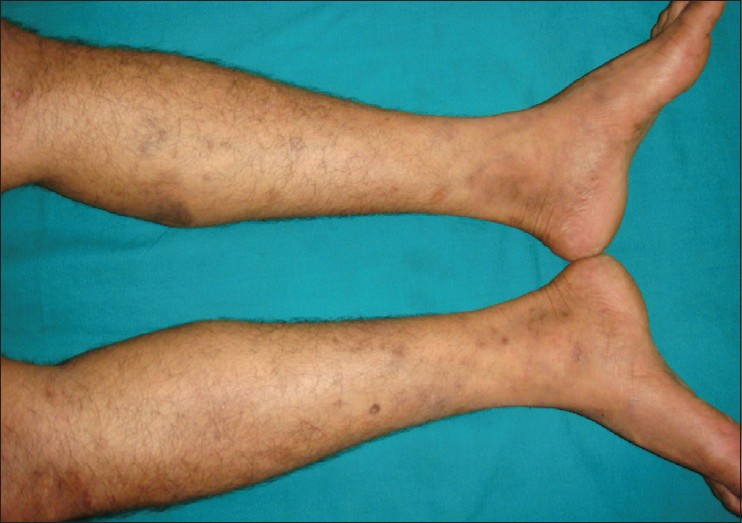 Figure 4: Excoriations and hyperpigmentation over legs