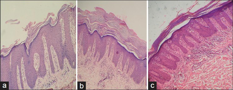 Figure 3: Inflammatory infiltrate (a) Grade 1 - mild (b) Grade 2 - moderate (c) Grade 3 - marked. (H and E stain, ×4)