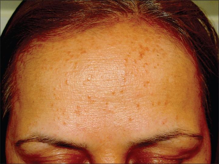 Milium Cyst - Milia: Causes, Types & Diagnosis - Healthline