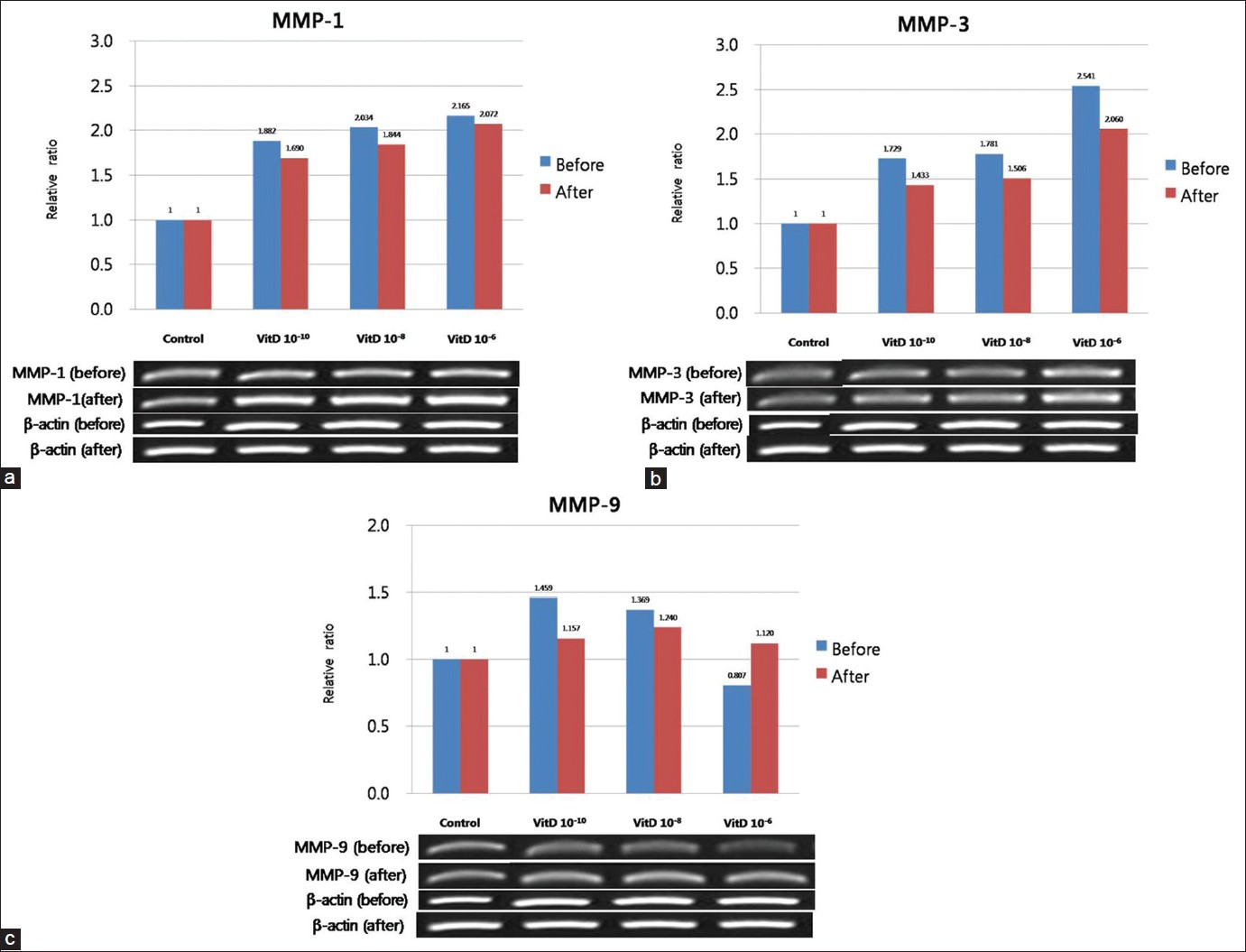 Figure 6: Effect of VDR siRNA on the gene expression of MMP-1 (a), MMP-3 (b), and MMP-9 (c) in cultured sebocytes after treatment with vitamin D