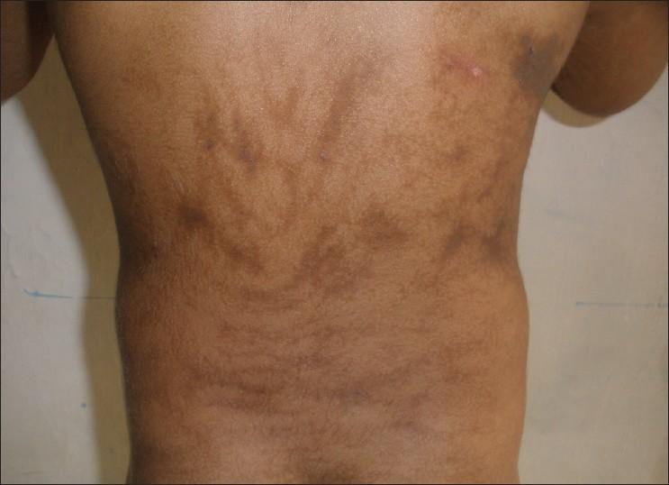 penyakit yang membuat kulit menghitam