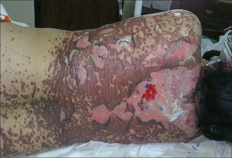 Clomid effect on skin