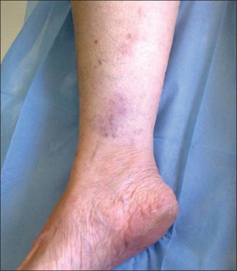 Figure 1: A clinical photograph of EN 1 week later on AZA treatment