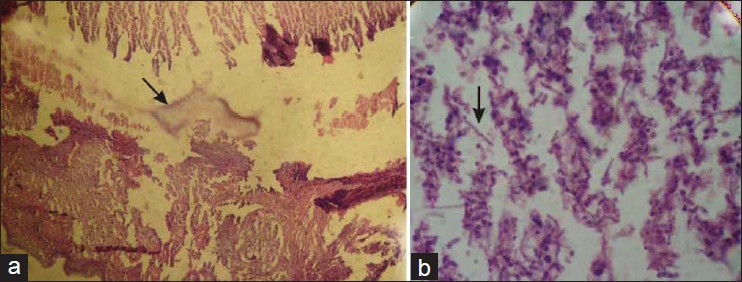 Figure 3: (a and b) Histopathological examination of crusted lesions (scutula) showing fungal hyphae (arrows) and inflammatory infiltrate (H and E, ×4 for 3A and ×40 for 3B)