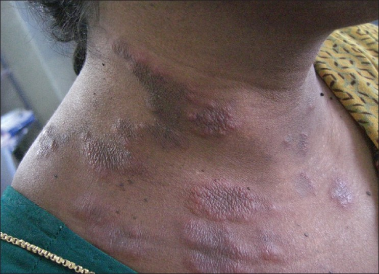 Figure 1: Erythematous plaques on the right side of neck and upper part of front of chest