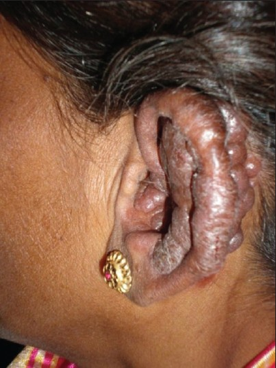 Figure 1: Multiple smooth dull-red nodulesaround left ear
