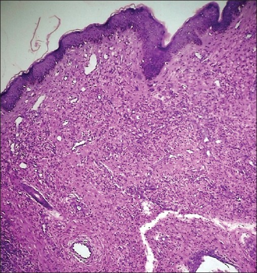 Figure 3: Proliferation of blood vessels with diffuse inflammatory infiltrate in the dermis (H and E, ×100)