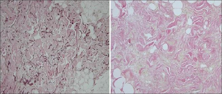 Figure 3: Comparison with a site-matched control reveals nearly complete loss of elastic fibers in the dermis of the pedunculated tumor (Verhoeff-van Gieson stain). Left: Control and right: Patient