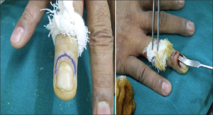 Figure 4: En bloc excision of the proximal nail fold in a case of chronic pronychia