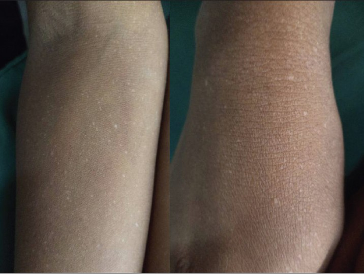 Figure 3: Reticulate acropigmentation of Dohi