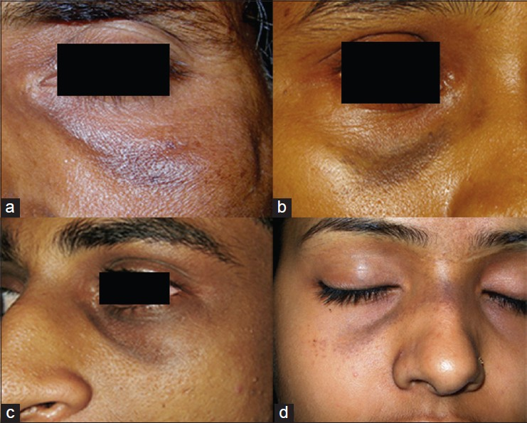 Increased Pigmentation Of The Periorbital Face