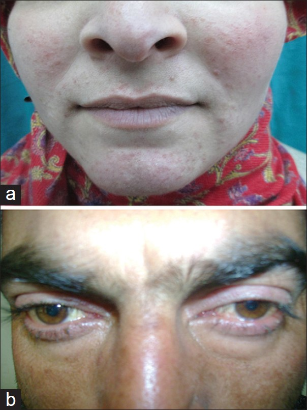Human Demodex Mite: The Versatile Mite of Dermatological