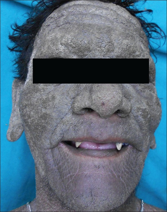 Epidermolytic Hyperkeratosis Face confluent scales over face