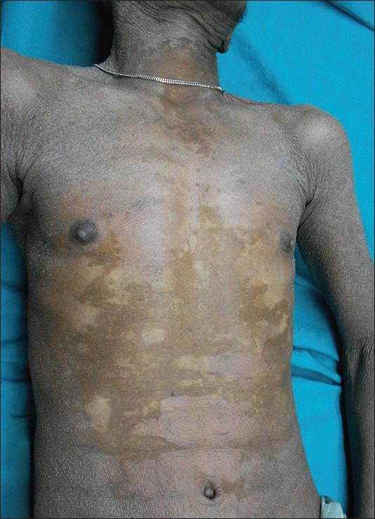 a case of ichthyosis hystrix unusual manifestation of
