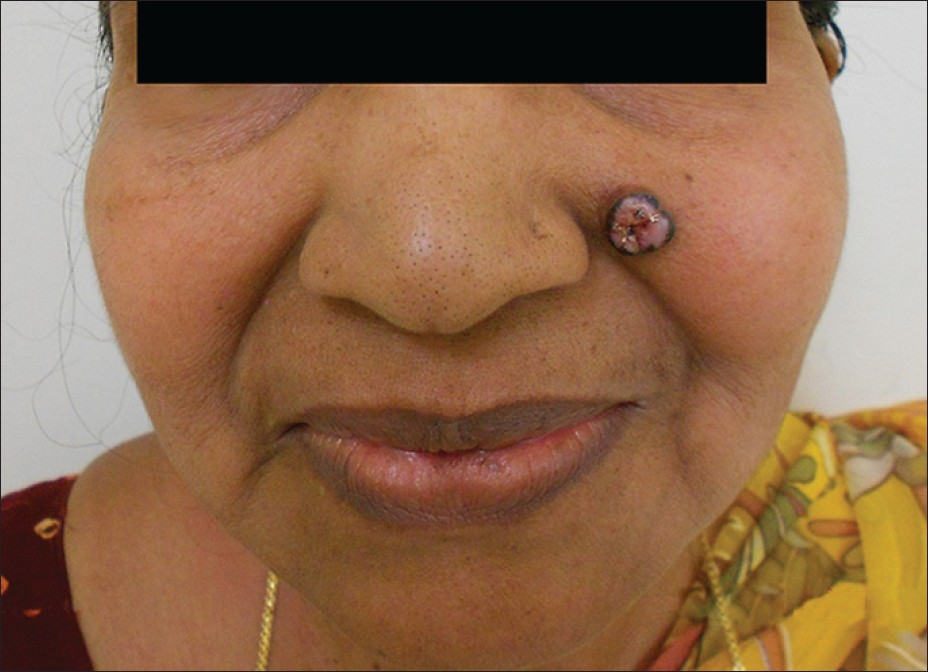 Figure 1: Ulcerated nodule with peripheral hyperpigmented rim over left cheek