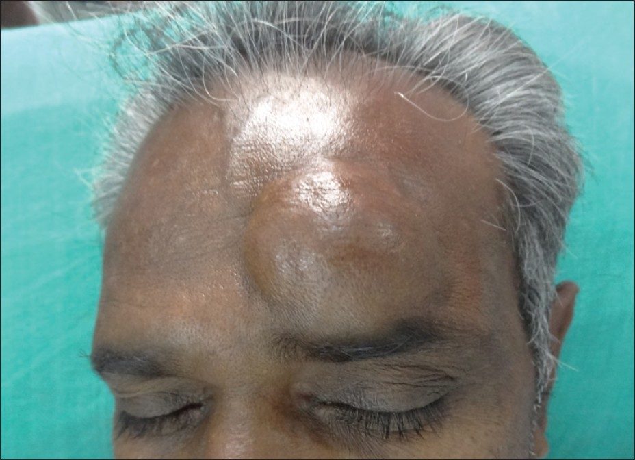 Figure 1: Well-defined, non-tender, slightly mobile, firm subcutaneous swelling on the left side of forehead