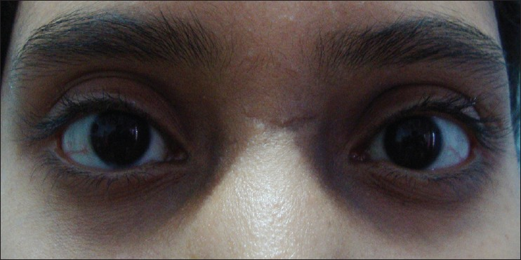 Figure 6: Grade 2 type of periorbital hyperpigmentation